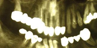 Rigenerazione ossea spontanea