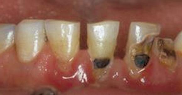 """Fig. 4 Evoluzione della carie: da """"white spot"""" alla dentina."""