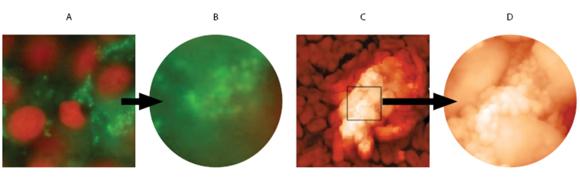Fig. 7 Formazione del biofilm su cellule epiteliali della mucosa buccale. A e B: immagini al microscopio a fluorescenza; C e D: immagini al microscopio atomico. A: batteri adesi a cellule B: batteri ricoperti da esopolisaccaride (biofilm) C: batteri con iniziale biofilm D: batteri ricoperti totalmente da esopolisaccaride.