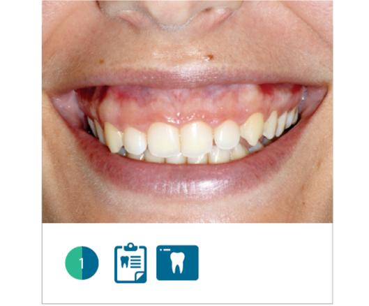 Fig. 1 Sorriso della paziente al baseline. Si nota una marcata esposizione di tessuto gengivale, dovuta ad eruzione passiva alterata.
