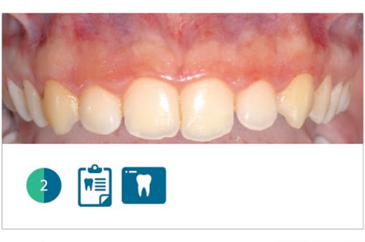 Fig. 2 Particolare del settore frontale superiore. Si può notare la forma quasi quadrata degli elementi dentari