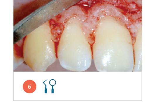 Fig. 6 Osteoplastica e ostectomia, per ricreare una giusta distanza della cresta ossea dalla linea amelo-cementizia delle corone dentarie di destra.