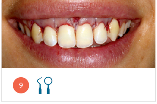 Fig. 9 Sorriso della paziente alla fine della chirurgia di allungamento di corona clinica.