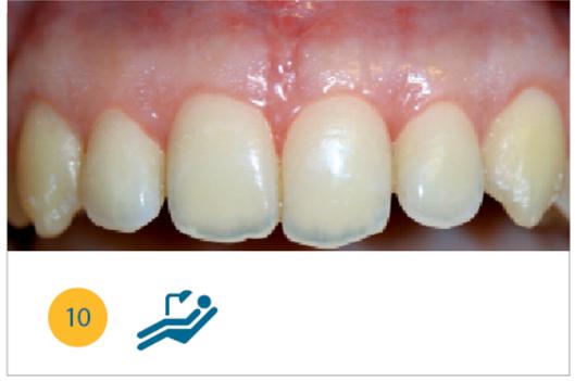 Fig. 10 Situazione clinica a quattro settimane dalla chirurgia.