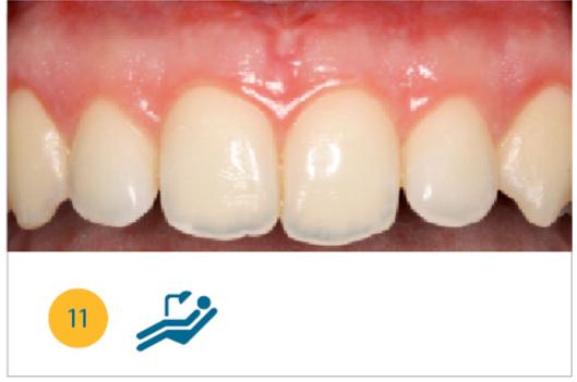 Fig. 11 Situazione clinica a due mesi dalla chirurgia.
