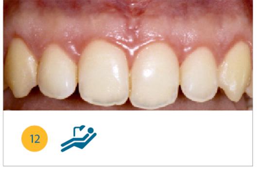 Fig. 12 Situazione clinica a tre mesi dalla chirurgia.