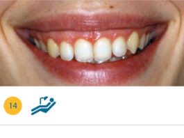 Trattamento del Gummy Smile