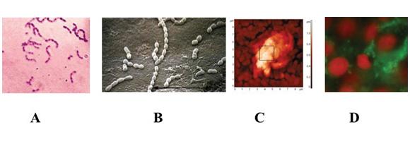 Fig. 1 Streptococcus mutans in forma planctonica (A), adeso ad una superficie abiotica (B), adeso in biofilm ad una superficie abiotica (C) e adeso in biofilm ad una superficie cellulare (D ). Le immagini sono state ottenute con diversi tipi di microscopia. A: microscopia ottica, B: microscopia elettronica a trasmissione, C: microscopia atomica, D: microscopia a fluorescenza.