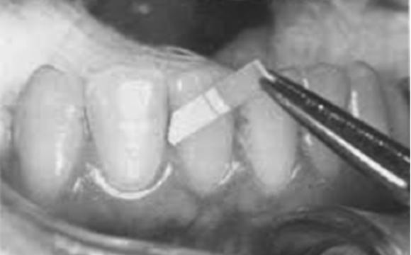 Fig. 2 Campione di fluido crevicolare raccolto mediante una strip di carta da filtro.