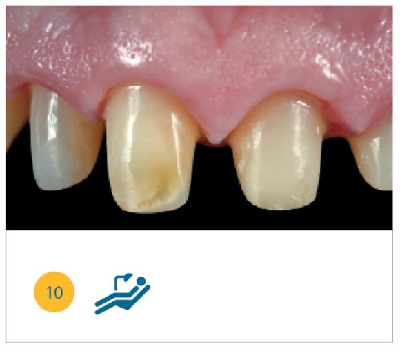 Preparazione degli elementi dentari e guarigione tissulare.