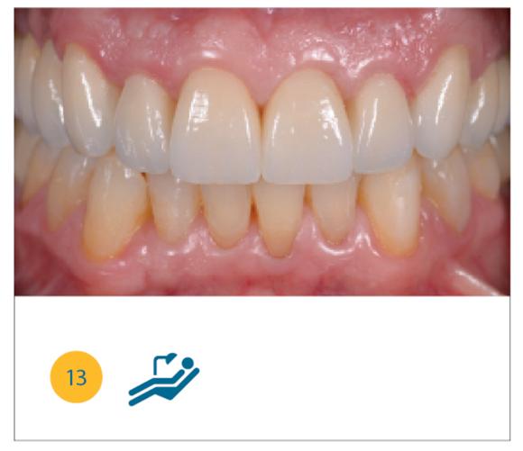 Caso clinico finale, ripristino occluso-funzionale ed estetico del paziente