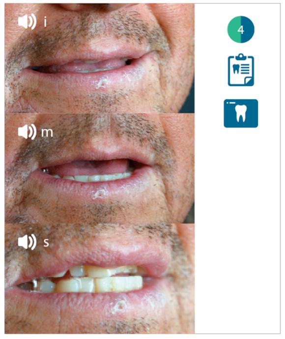 Valutazione fonetica del paziente