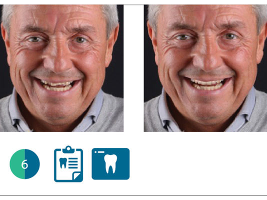 valutazione digitale del paziente con software Digital Smile System