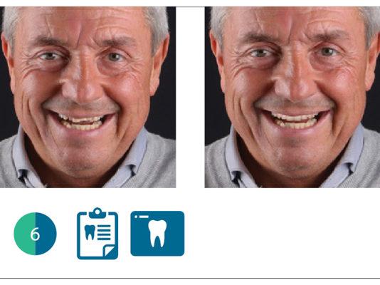 valutazione digitale del paziente con software Digital Smile System