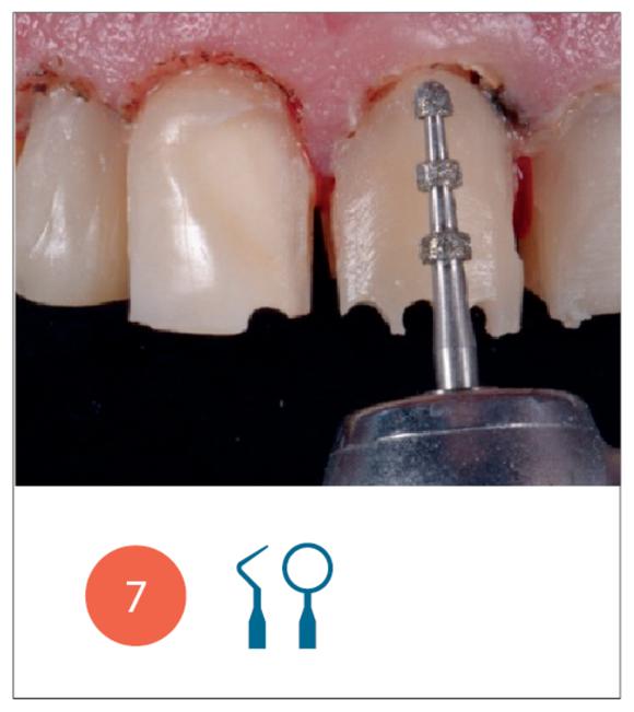 Fase di preparazione degli elementi dentari eseguita con metodica mininvasiva