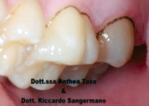 Fig. 1 Dentatura affetta da black stain.