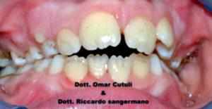 Fig. 2A Black stain: prima del trattamento con compresse orosolubili contenenti 50 mg di lattoferrina.