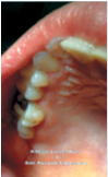 Fig. 3A Black stain: prima del trattamento con compresse orosolubili contenenti 50 mg di lattoferrina.