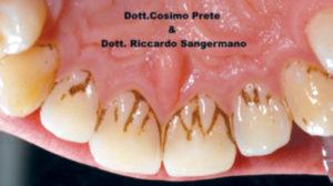 Fig. 4A Black stain: prima del trattamento con compresse orosolubili contenenti 50 mg di lattoferrina.