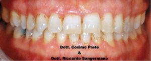 Fig. 5A Black stain: prima del trattamento con compresse orosolubili contenenti 50 mg di lattoferrina.