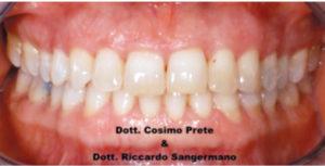 Fig. 5B Black stain: dopo 90 giorni di trattamento con compresse orosolubili contenenti 50 mg di lattoferrina.
