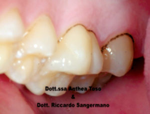 Fig. 6A Black stain: prima del trattamento con compresse orosolubili contenenti 50 mg di lattoferrina.