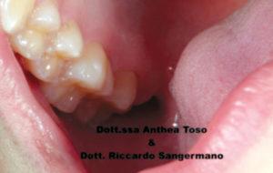 Fig. 6B Black stain: dopo 90 giorni di trattamento con compresse orosolubili contenenti 50 mg di lattoferrina.