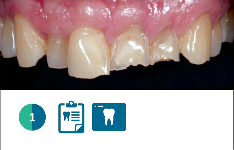 Fig. 1 Caso clinico iniziale, paziente adulto, con diffusa erosione/abrasione degli elementi naturali dell'arcata superiore.