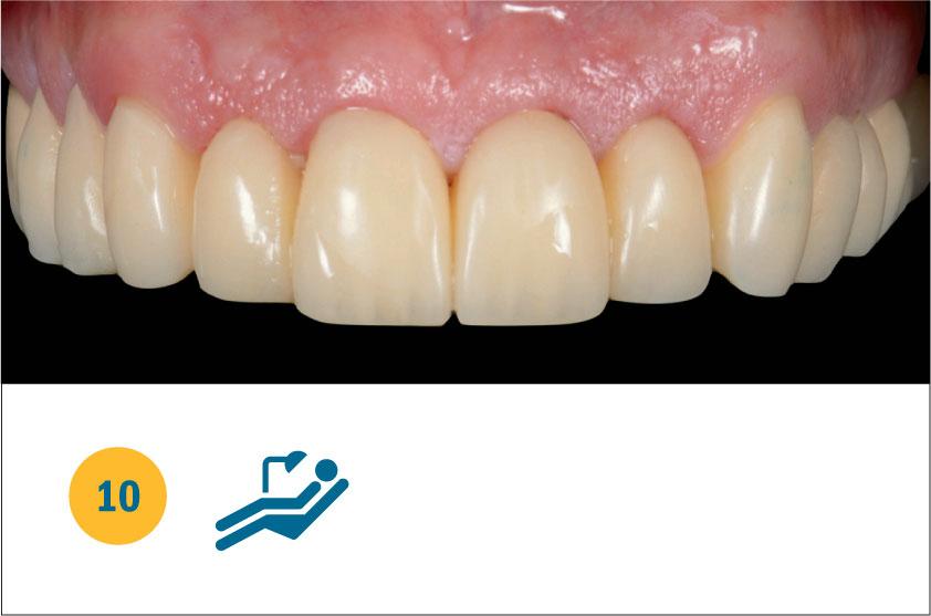 Fig. 10 Guarigione tissutale post chirurgica e post preparazione elementi naturali a 5 giorni dall'applicazione della LLLT.