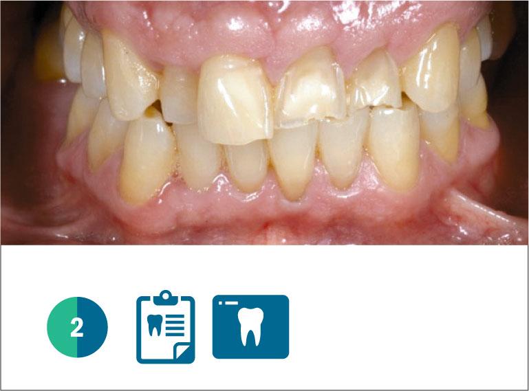 Fig. 2 Caso clinico iniziale, paziente adulto, con diffusa erosione/abrasione degli elementi naturali dell'arcata superiore.