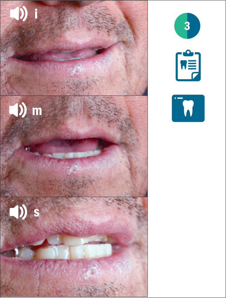Fig. 3 Valutazione fonetica del paziente.