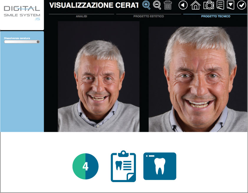 Fig. 4 Valutazione digitale del paziente con software Digital Smile System.