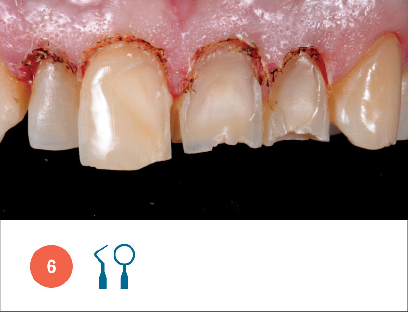 Fig. 6 Ottenimento della gengivectomia in area estetica.