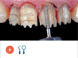 Fig. 8 Fase di preparazione mininvasiva degli elementi dentari.