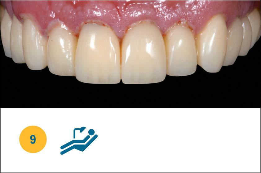 Fig. 9 Guarigione tissutale post chirurgica e post preparazione elementi naturali a 3 giorni dall'applicazione della LLLT.