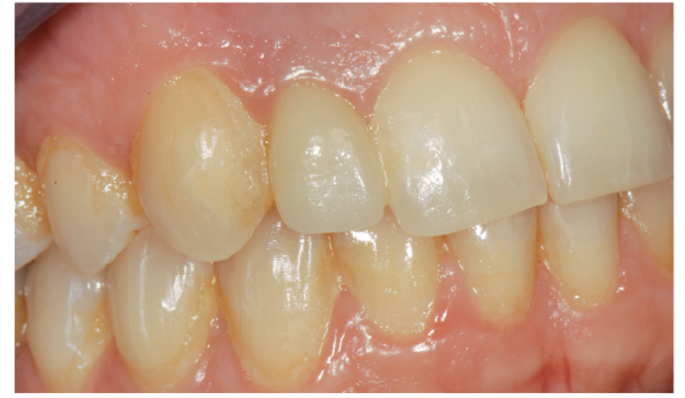agenesia dentale milano en
