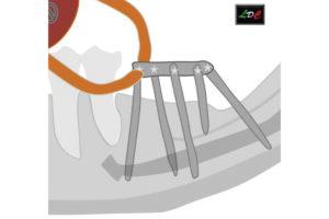 struttura implantare costituita dalla barra e dagli impianti ad essa saldati.