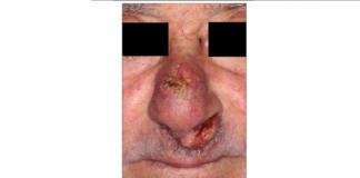 paziente affetto da carcinoma epidermoide infiltrante del naso