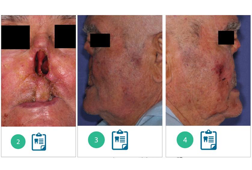 riabilitazione oro maxillo facciale