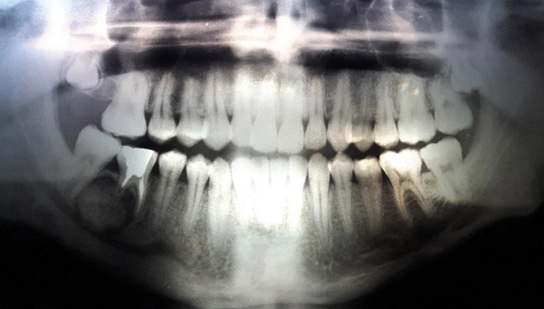 Radiografia ortopanoramica