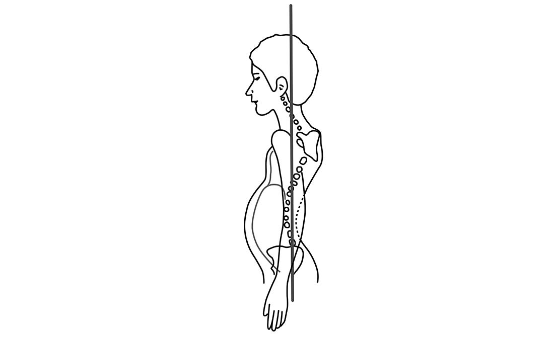 postura del respiratore orale
