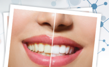 Daring White di Garrison Dental Solution