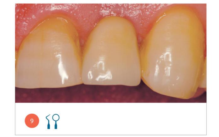 Ribialitazione implantoprotesica a carico immediato