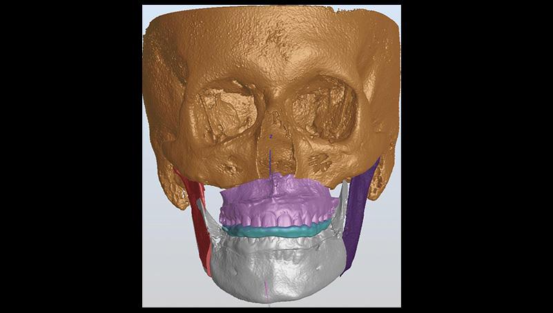 CAD CAM splint chirurgico finale