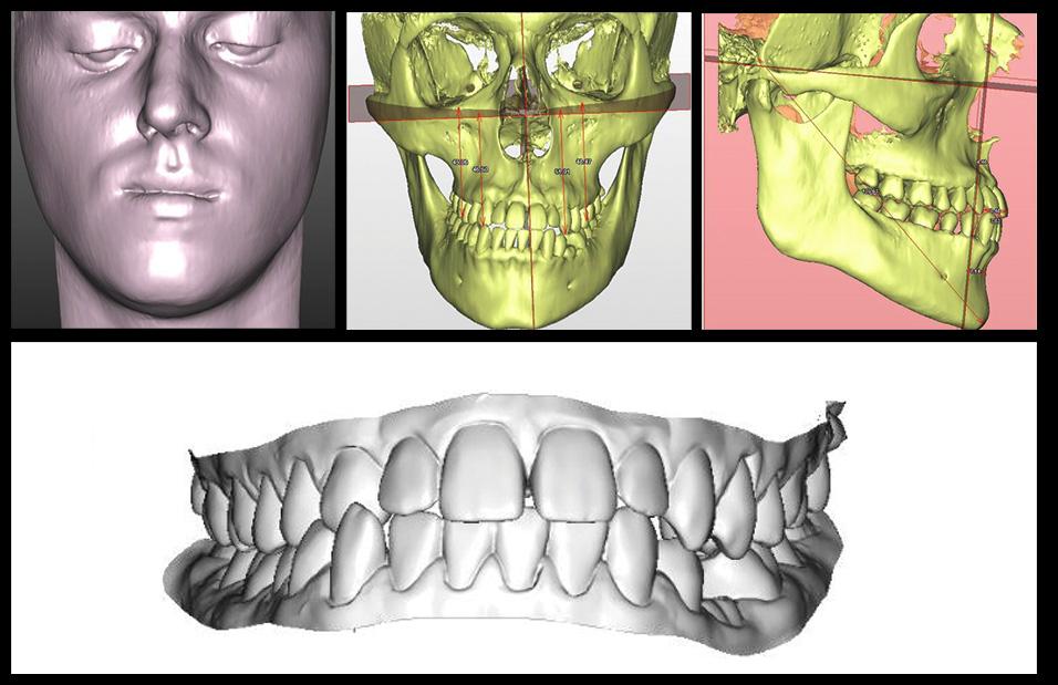 T0: Workflow digitale 3D data set.