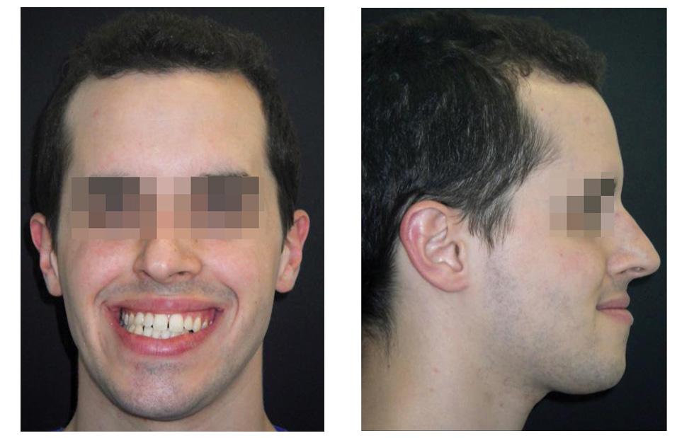 T0: classe III scheletrica - iperplasia condilare unilaterale - morso crociato destro.