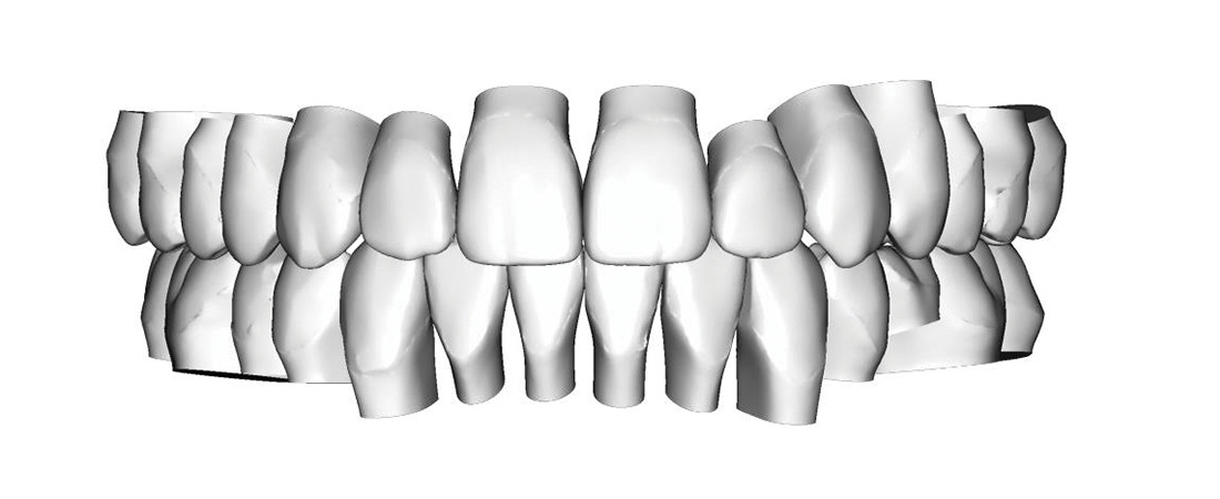 VDSTU virtual dental set up