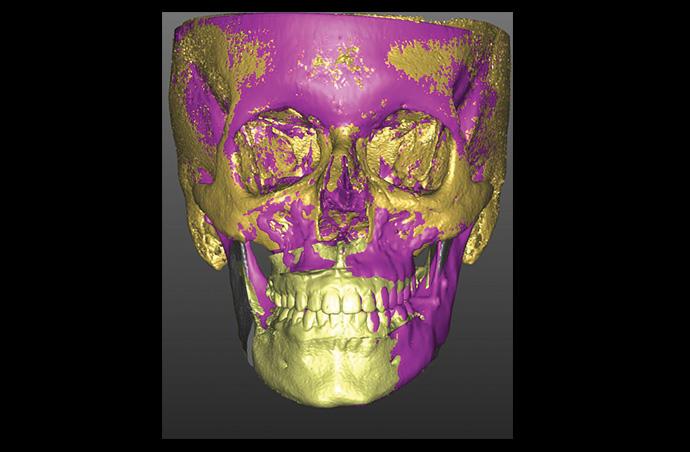 Superimposizione 3D Base Cranica VSP/FINALE (T2)