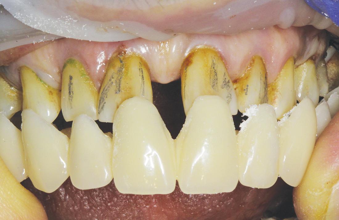 Il provvisorio viene adattato agli elementi dentari eseguendo delle odontotomie in corrispondenza delle linee effettuate con la matita sui denti