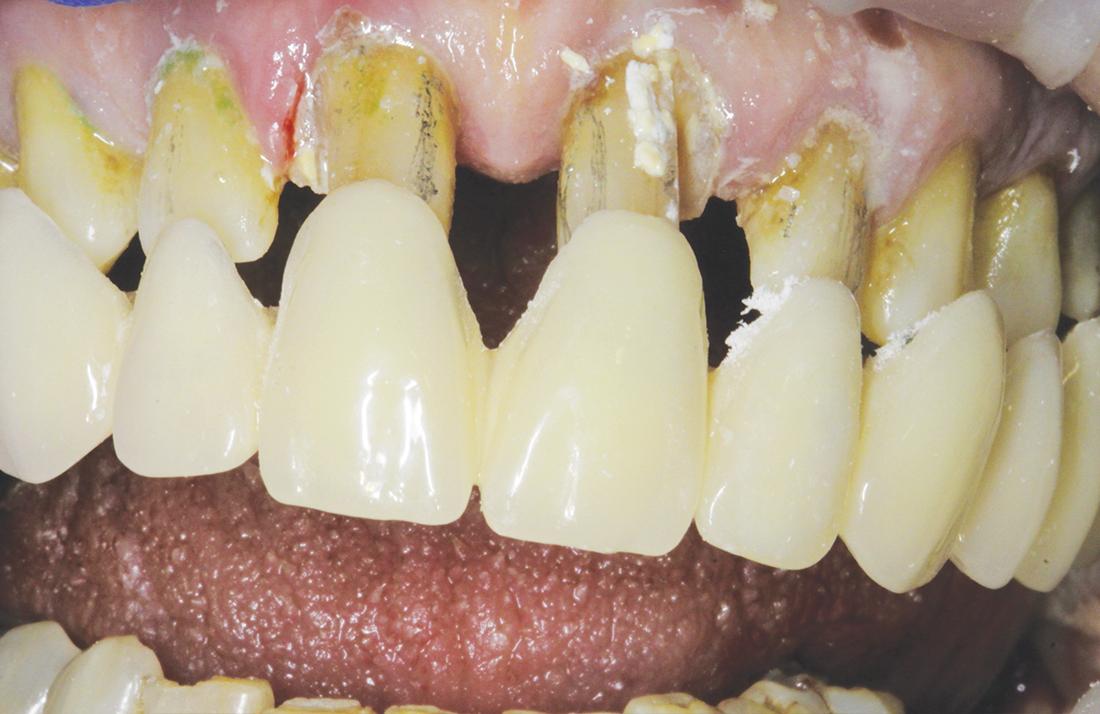 Le odontotomie eseguite sugli elementi dentari.